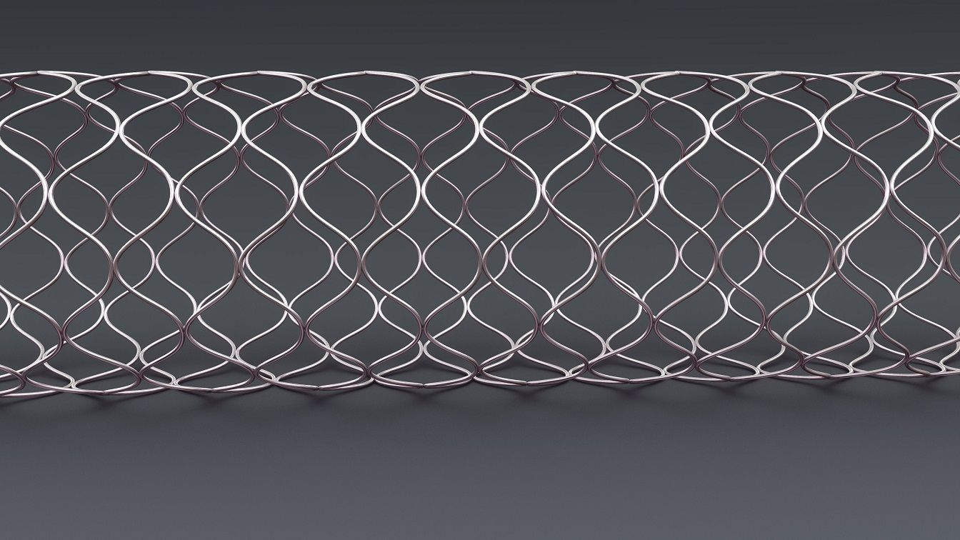 Another supported stent example pattern